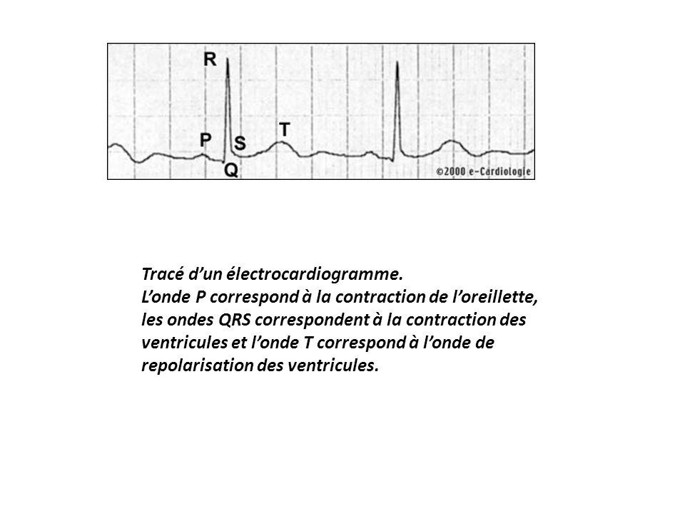 Tracé d'un électrocardiogramme