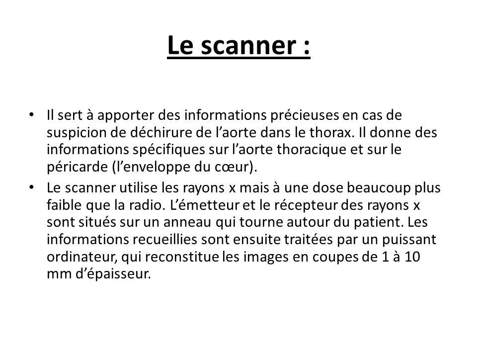 Le scanner :