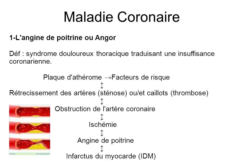 Maladie Coronaire 1-L angine de poitrine ou Angor