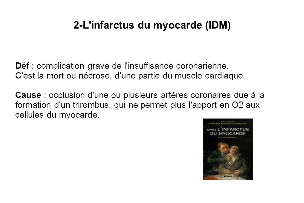 2-L infarctus du myocarde (IDM)