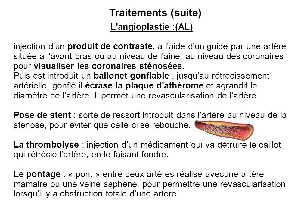 Traitements (suite) L angioplastie :(AL)