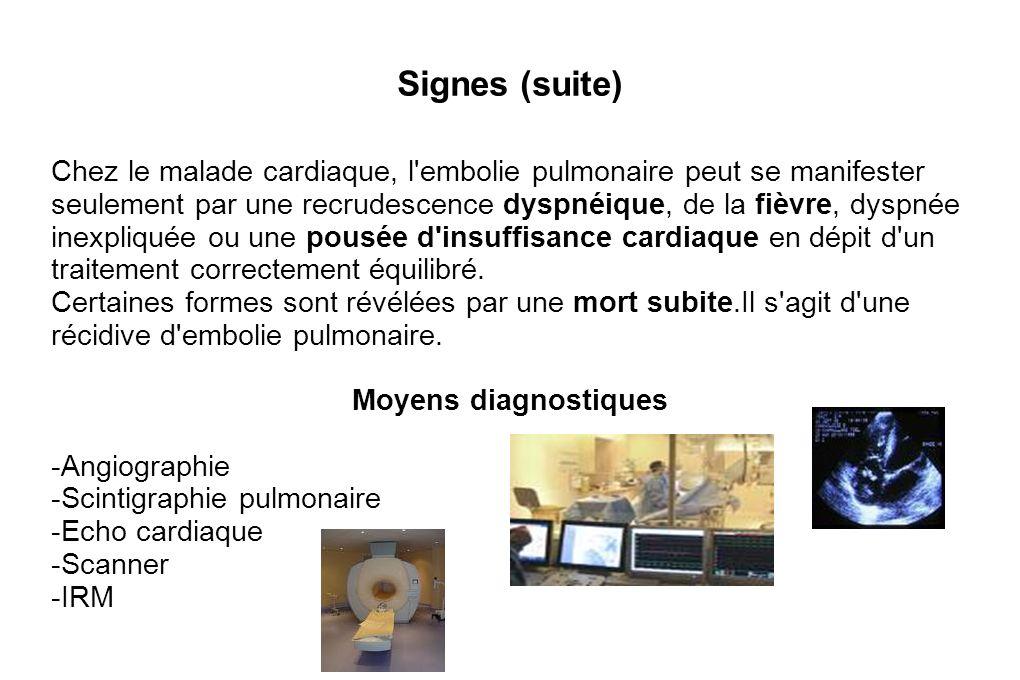 Signes (suite)