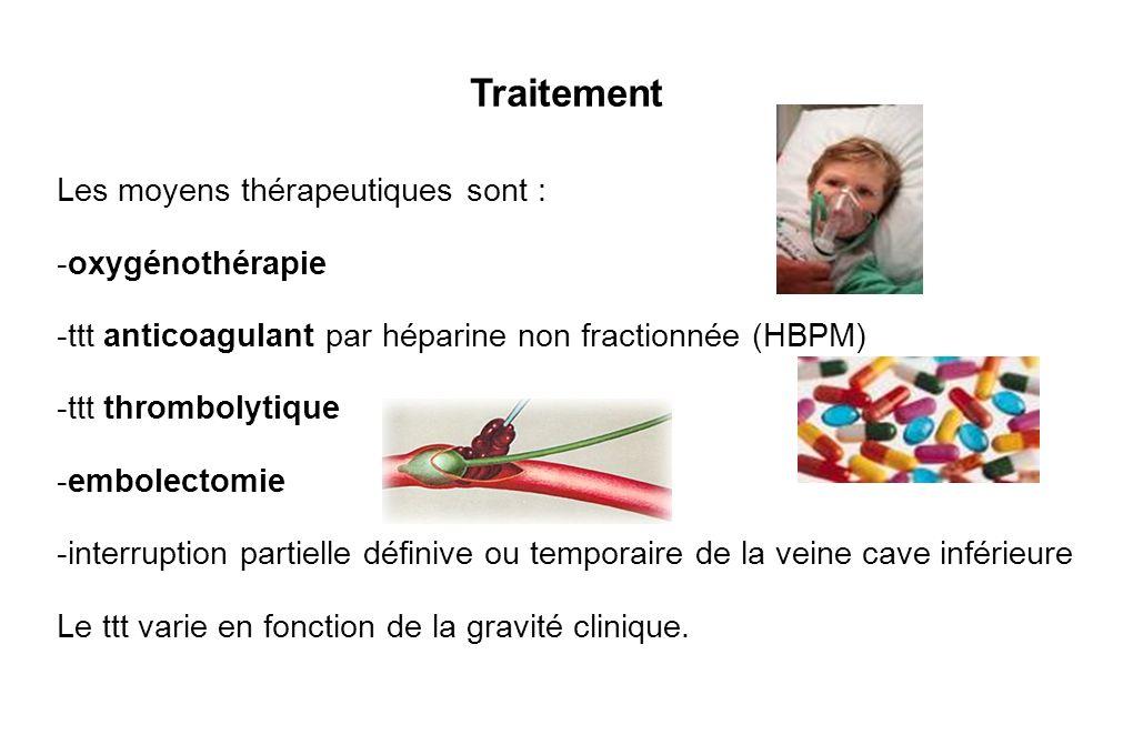 Traitement Les moyens thérapeutiques sont : -oxygénothérapie