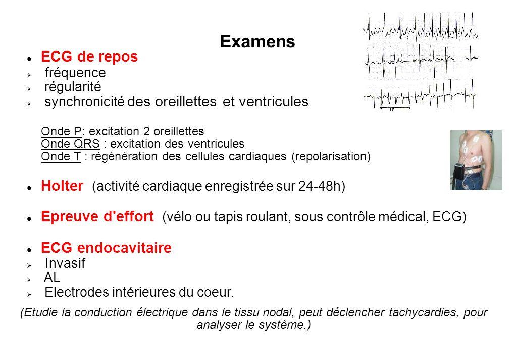 Examens ECG de repos fréquence