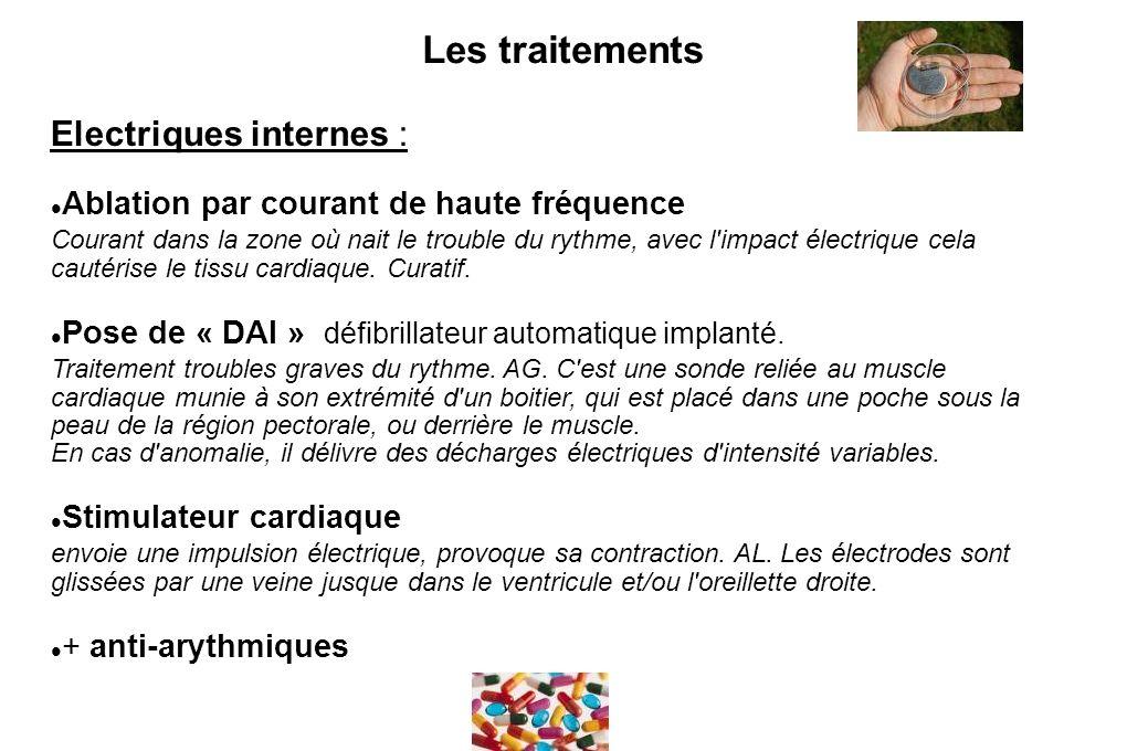 Les traitements Electriques internes :
