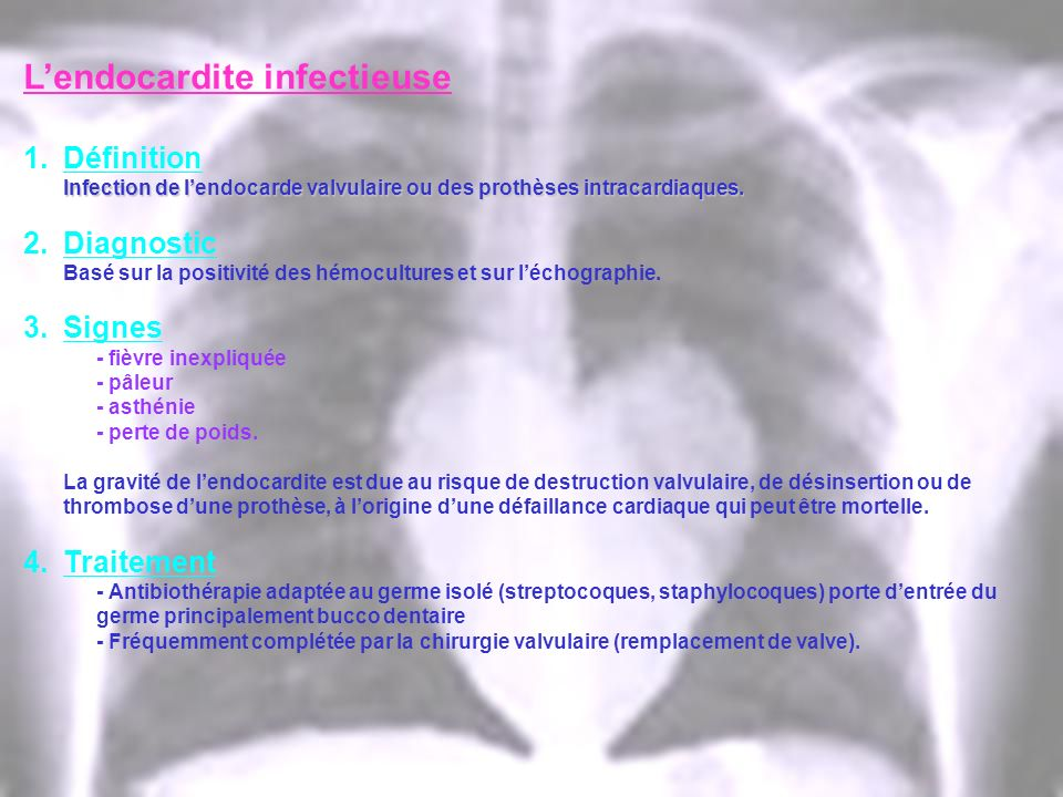 L'endocardite infectieuse