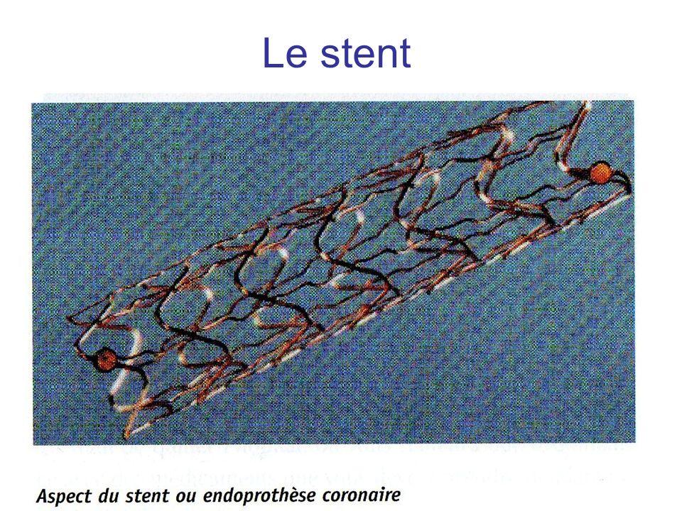 Le stent