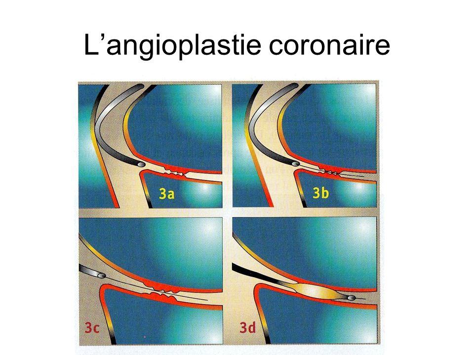 L'angioplastie coronaire