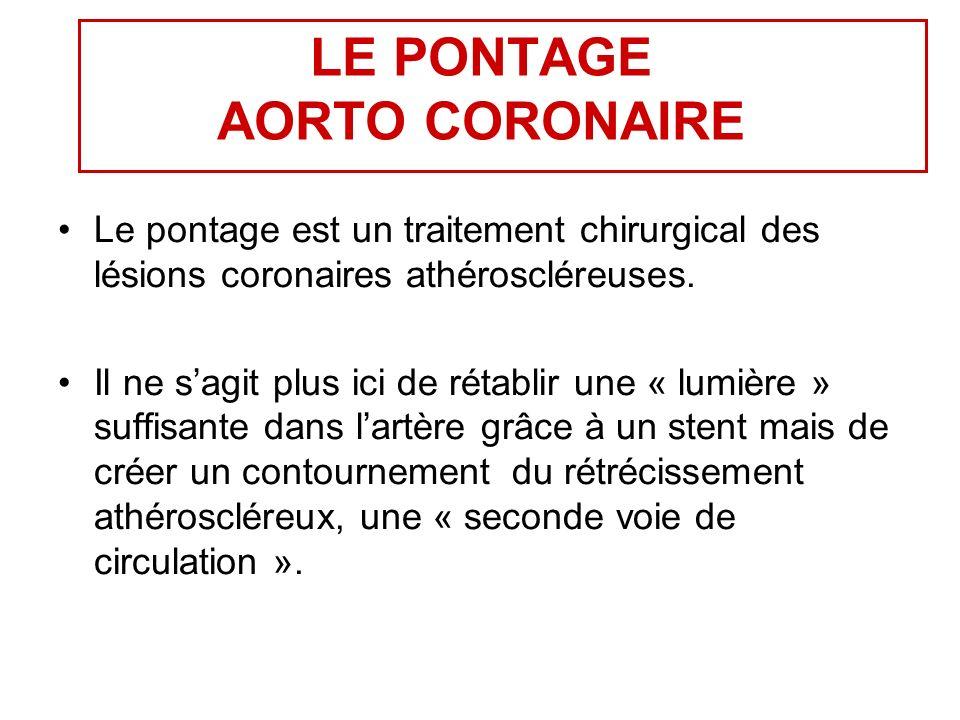 LE PONTAGE AORTO CORONAIRE