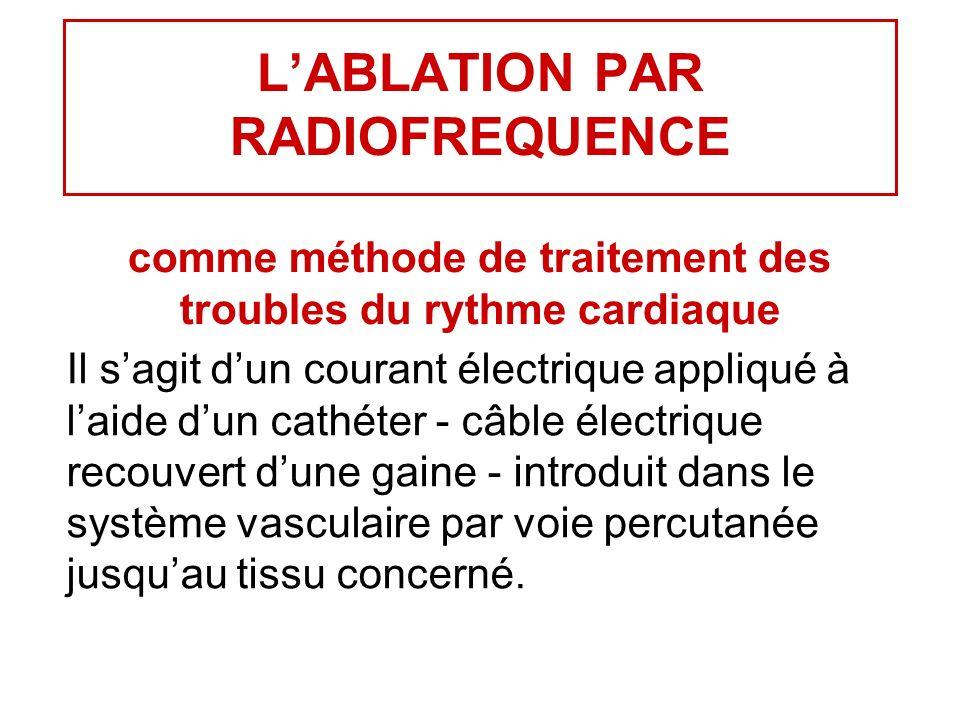 L'ABLATION PAR RADIOFREQUENCE comme méthode de traitement des troubles du rythme cardiaque