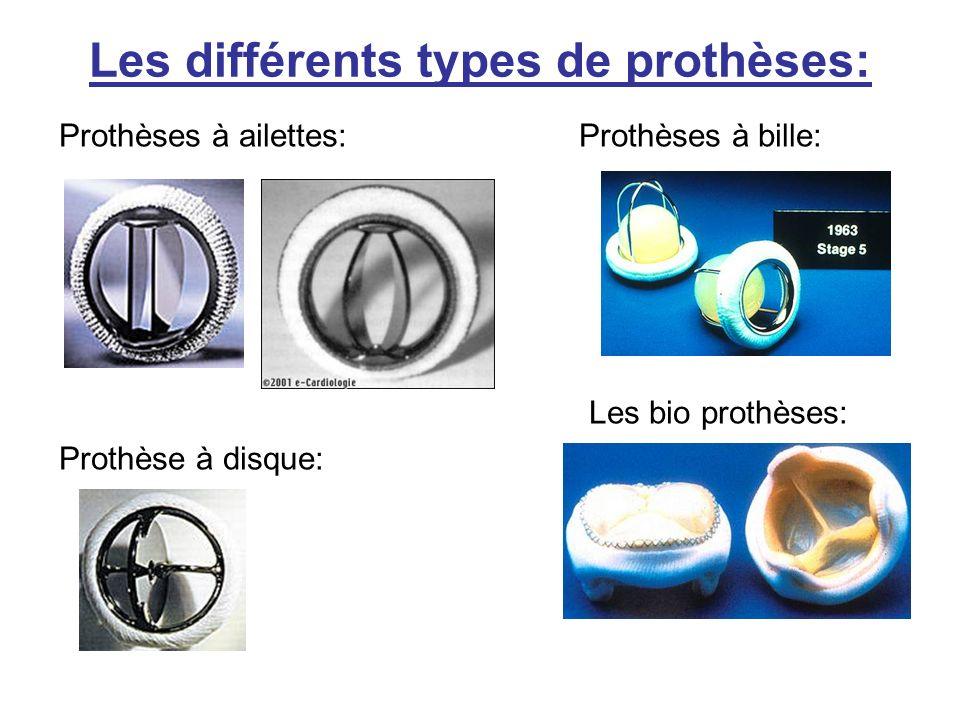 Les différents types de prothèses: