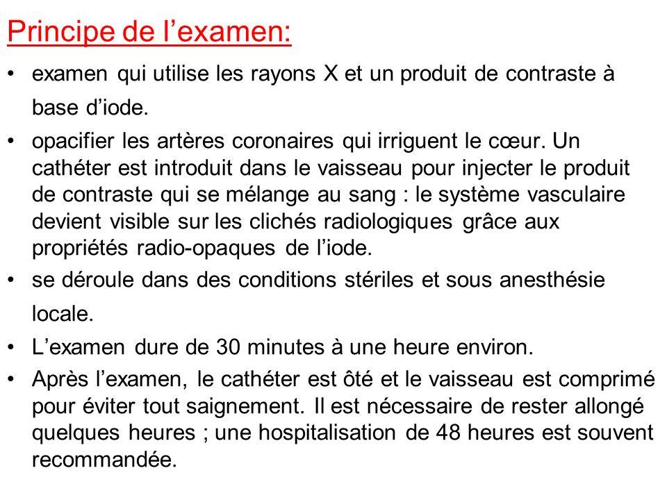 Principe de l'examen: examen qui utilise les rayons X et un produit de contraste à base d'iode.