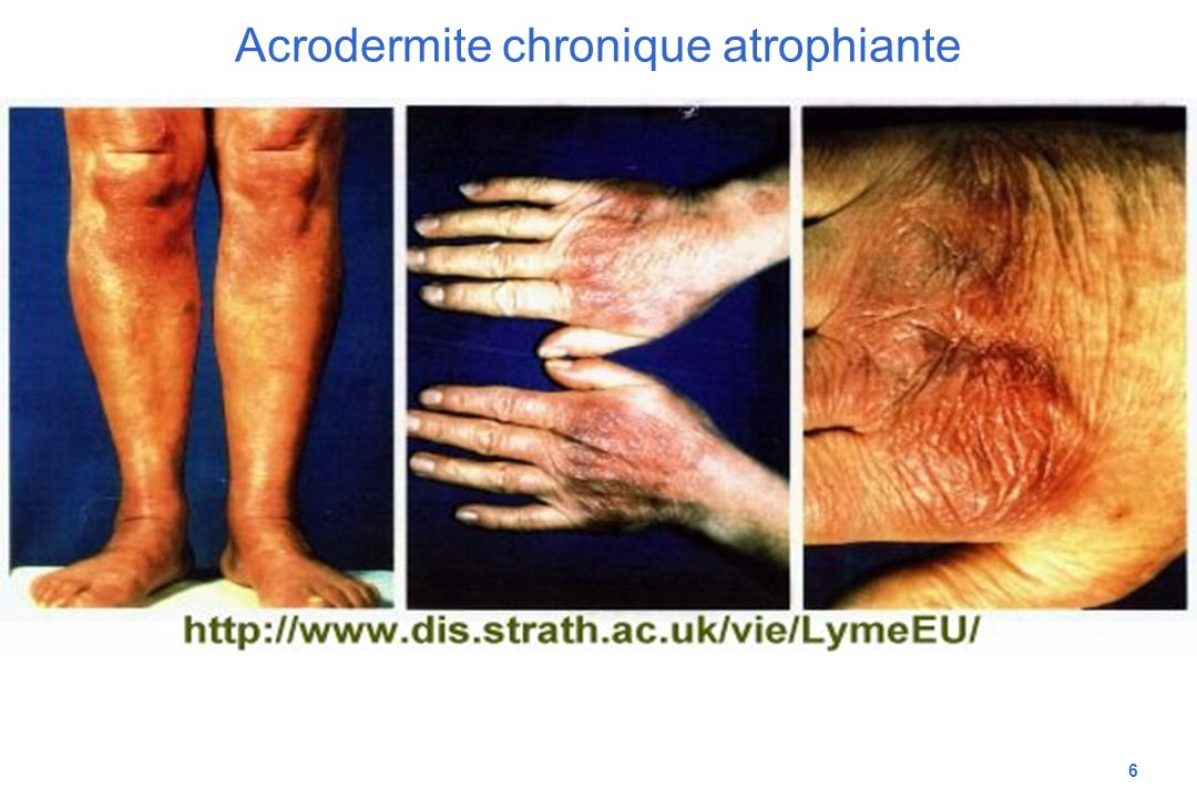 Acrodermite chronique atrophiante