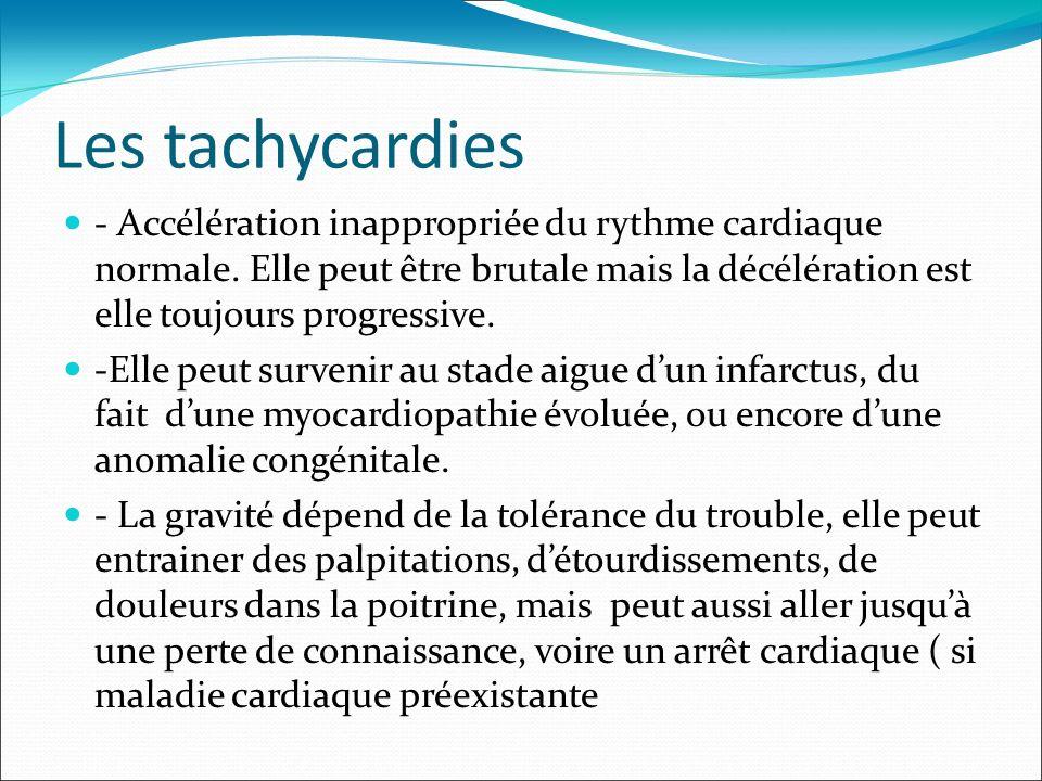 Les tachycardies