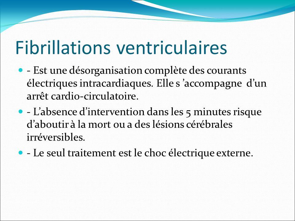 Fibrillations ventriculaires