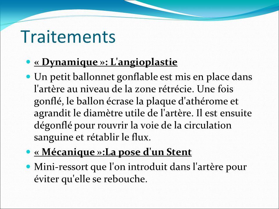 Traitements « Dynamique »: L angioplastie
