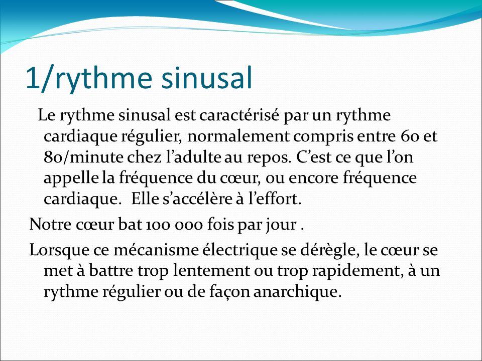 1/rythme sinusal