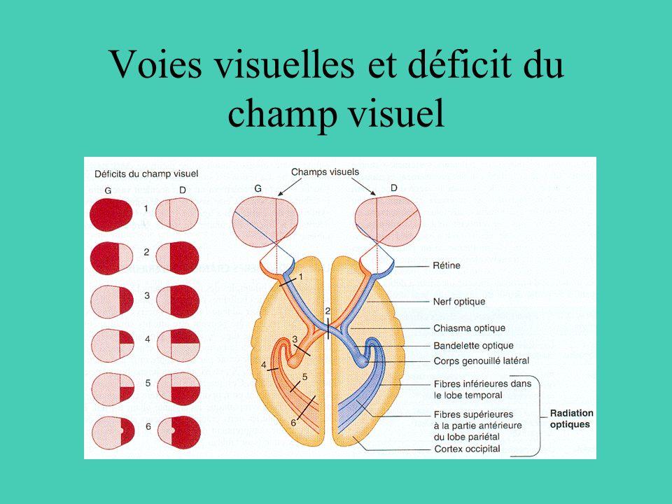 Voies visuelles et déficit du champ visuel