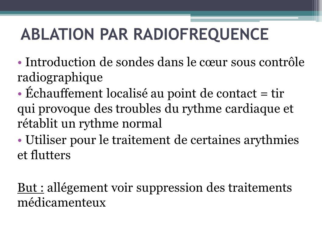 ABLATION PAR RADIOFREQUENCE