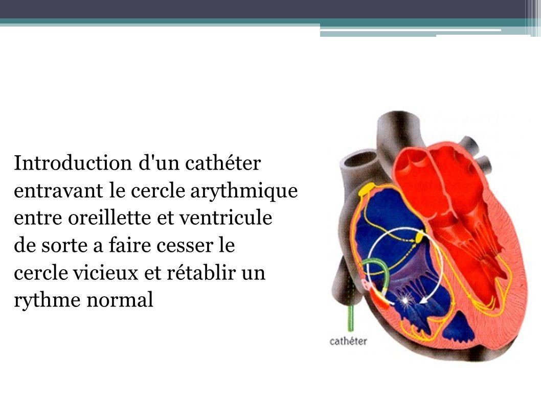 Introduction d un cathéter