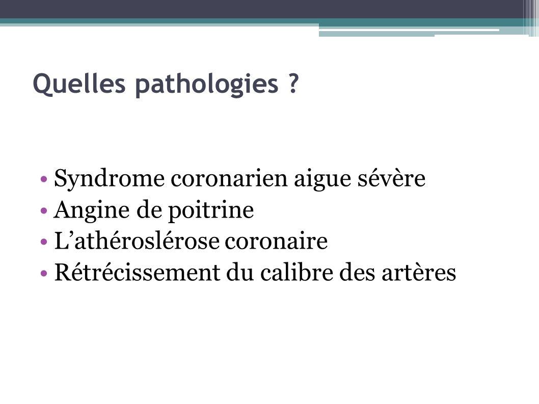 Quelles pathologies Syndrome coronarien aigue sévère
