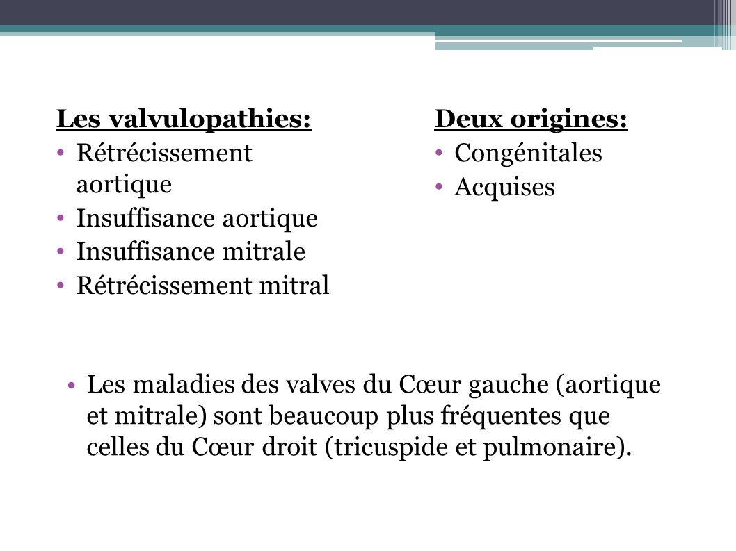 Les valvulopathies:Rétrécissement aortique. Insuffisance aortique. Insuffisance mitrale. Rétrécissement mitral.