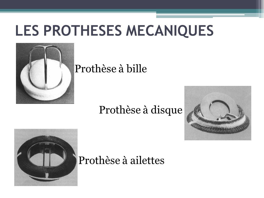 LES PROTHESES MECANIQUES