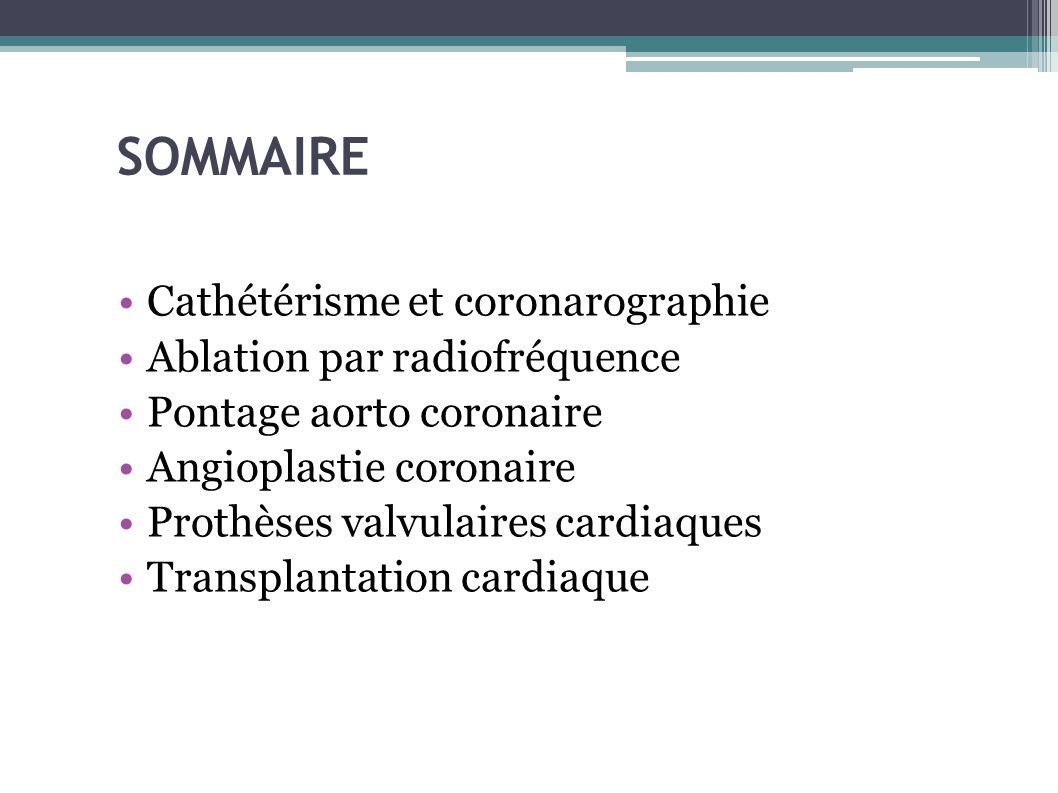 SOMMAIRE Cathétérisme et coronarographie Ablation par radiofréquence