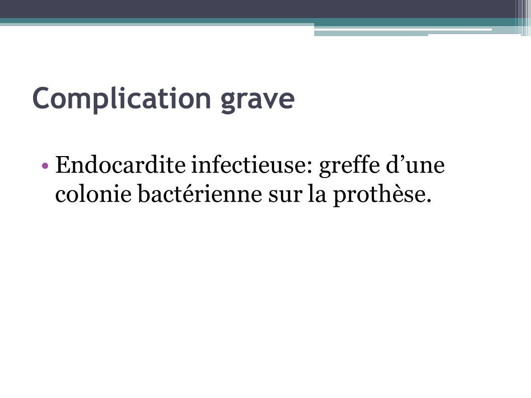 Complication grave Endocardite infectieuse: greffe d'une colonie bactérienne sur la prothèse.