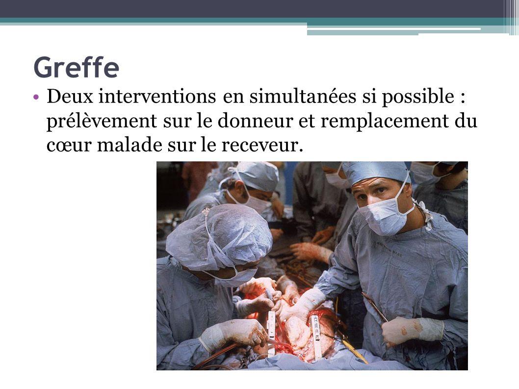 Greffe Deux interventions en simultanées si possible : prélèvement sur le donneur et remplacement du cœur malade sur le receveur.
