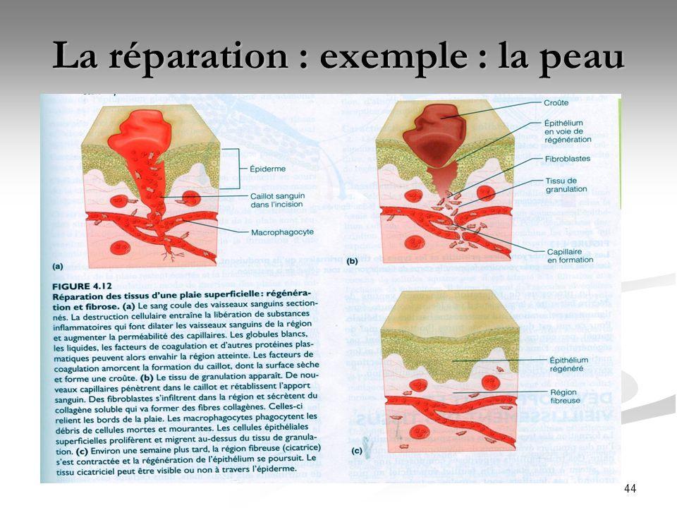 La réparation : exemple : la peau