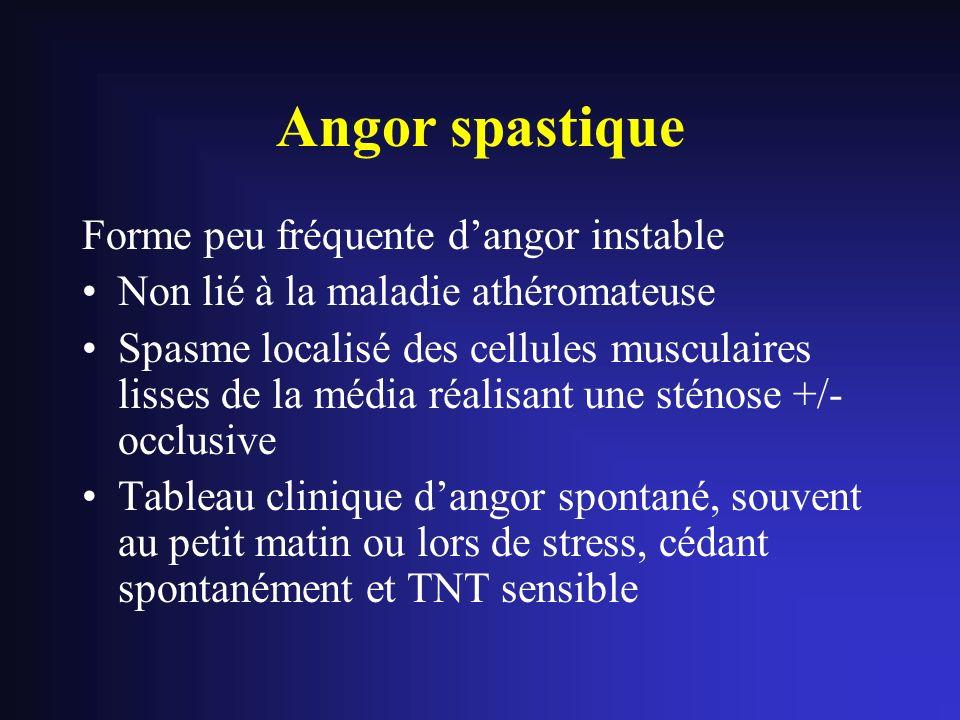 Angor spastique Forme peu fréquente d'angor instable