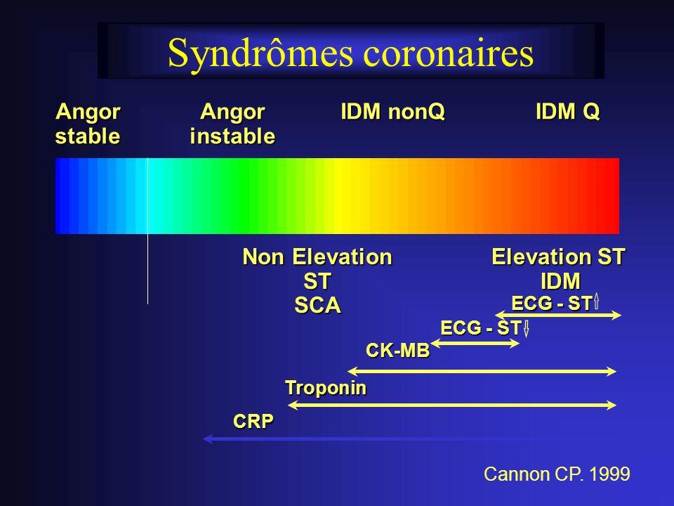 Syndrômes coronaires Angor stable Angor instable IDM nonQ IDM Q