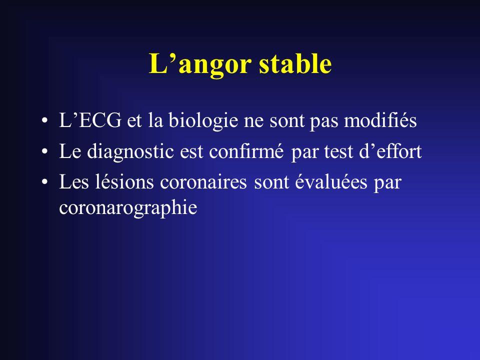 L'angor stable L'ECG et la biologie ne sont pas modifiés