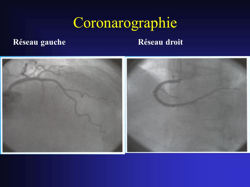 Coronarographie Réseau gauche Réseau droit