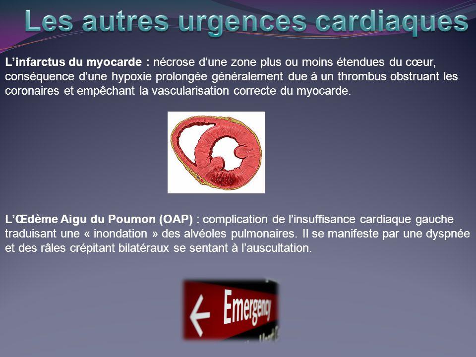Les autres urgences cardiaques