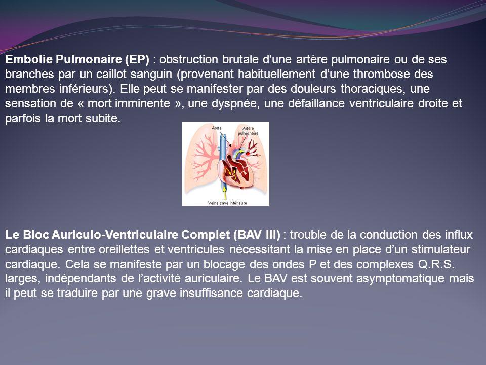 Embolie Pulmonaire (EP) : obstruction brutale d'une artère pulmonaire ou de ses branches par un caillot sanguin (provenant habituellement d'une thrombose des membres inférieurs). Elle peut se manifester par des douleurs thoraciques, une sensation de « mort imminente », une dyspnée, une défaillance ventriculaire droite et parfois la mort subite.
