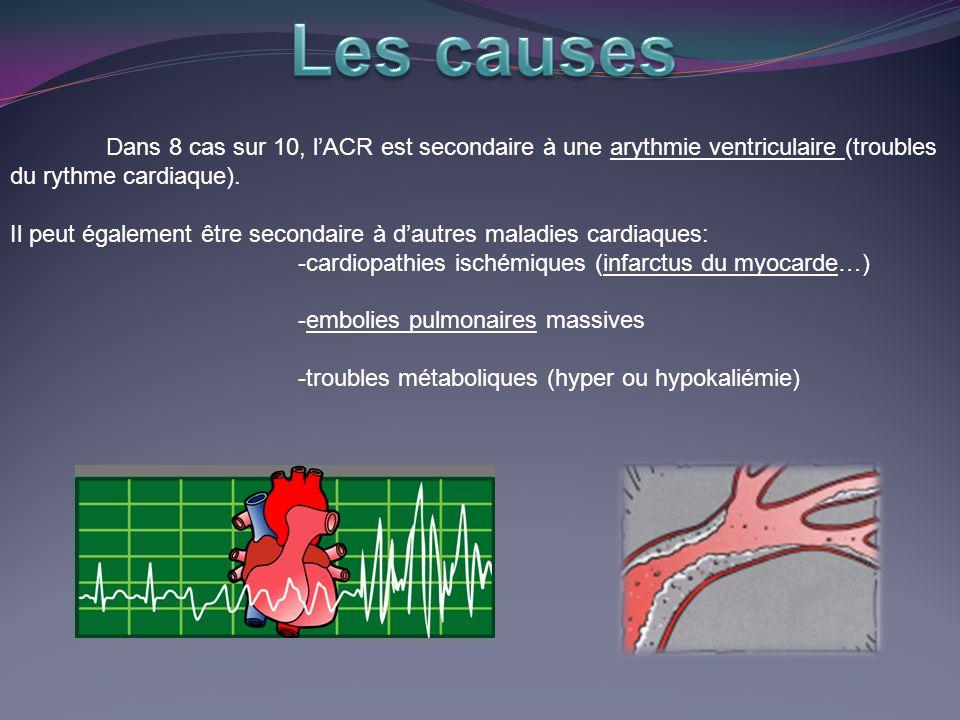 Les causes Dans 8 cas sur 10, l'ACR est secondaire à une arythmie ventriculaire (troubles du rythme cardiaque).