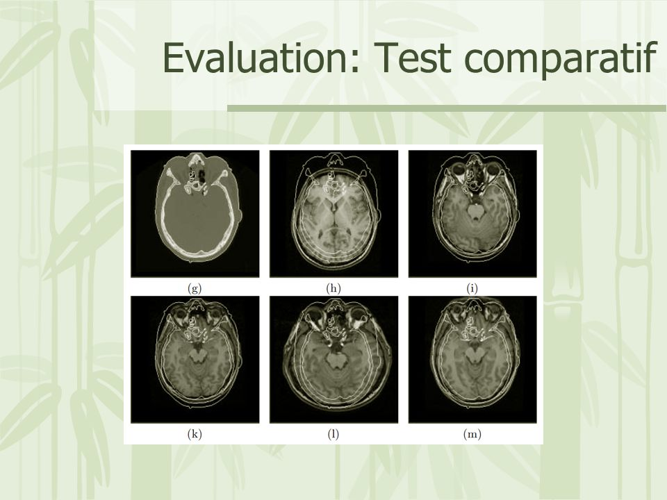 Evaluation: Test comparatif