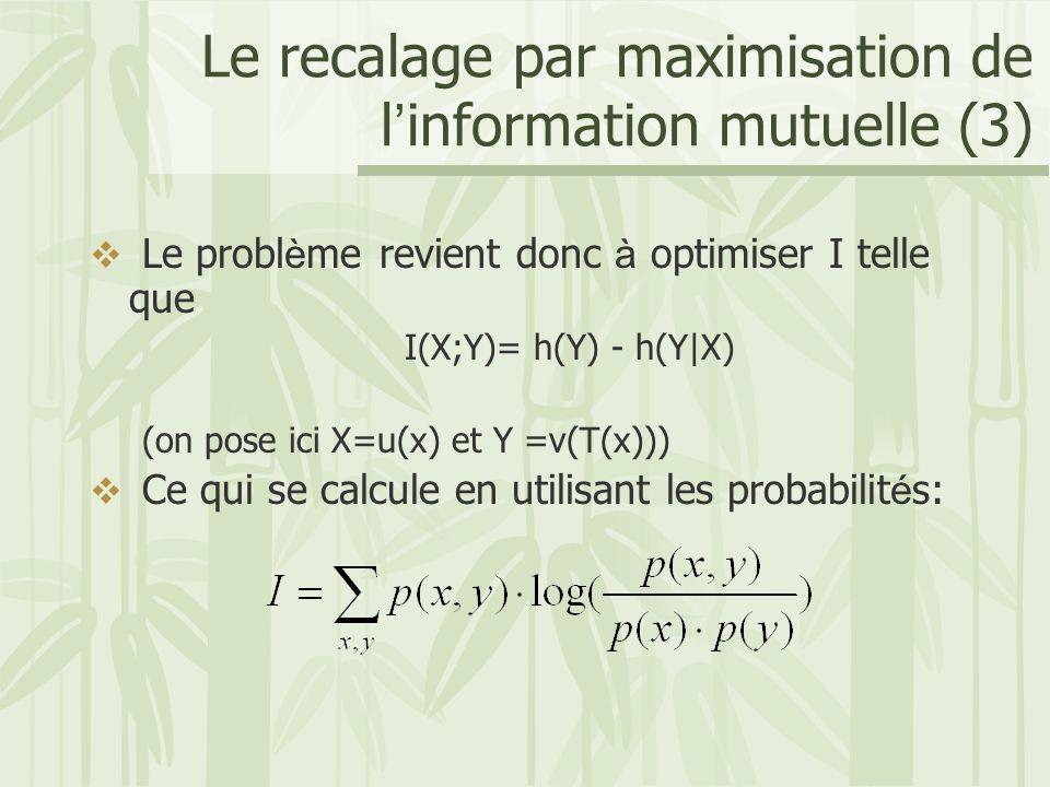 Le recalage par maximisation de l'information mutuelle (3)