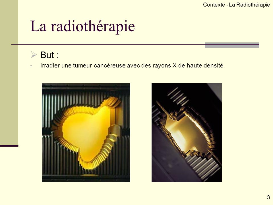Contexte - La Radiothérapie