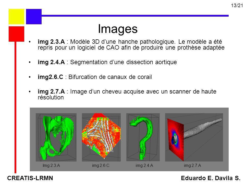 13/21Images. img 2.3.A : Modèle 3D d'une hanche pathologique. Le modèle a été repris pour un logiciel de CAO afin de produire une prothèse adaptée.