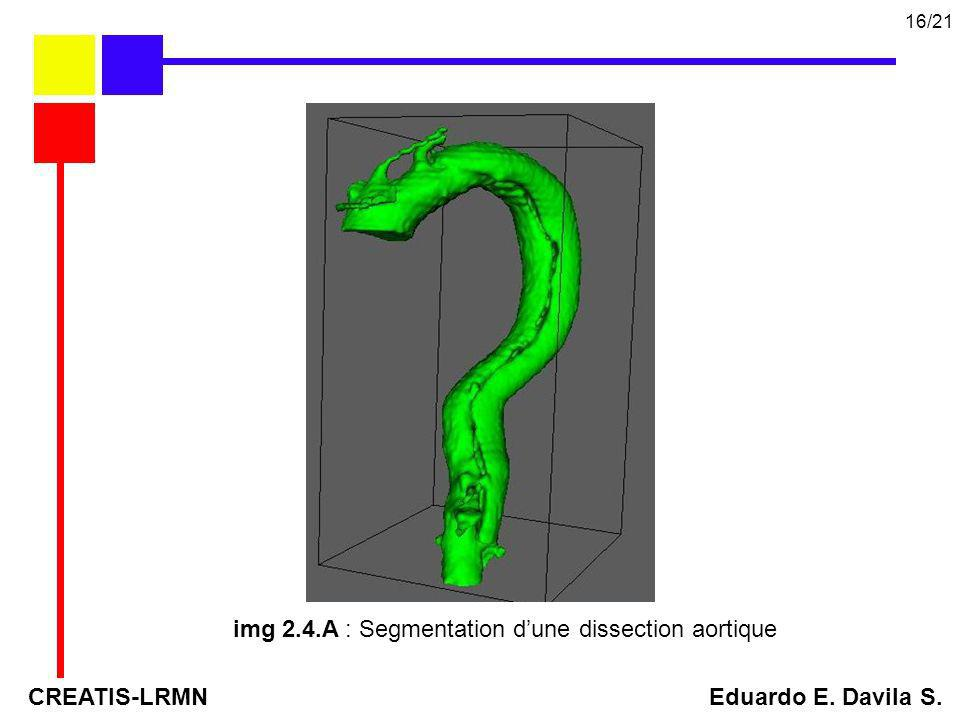 img 2.4.A : Segmentation d'une dissection aortique