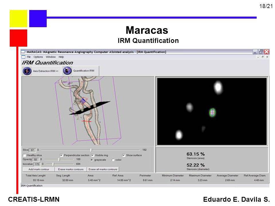 18/21 Maracas. IRM Quantification.