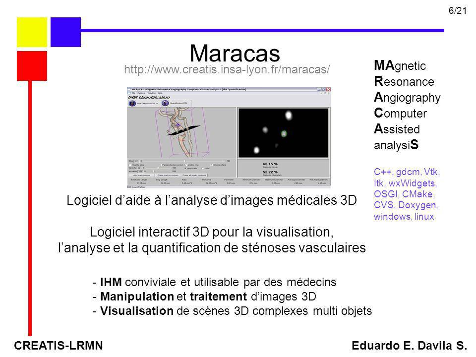 Maracas MAgnetic Resonance Angiography Computer Assisted