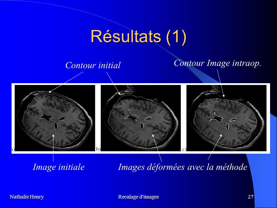 Résultats (1) Contour Image intraop. Contour initial Image initiale
