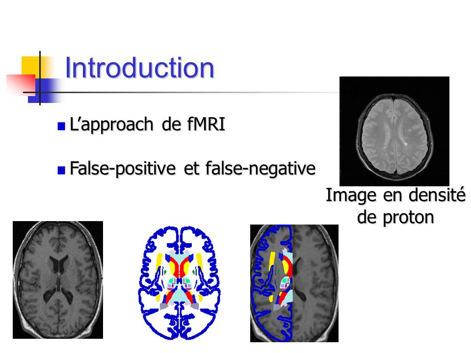 Introduction Image en densité de proton L'approach de fMRI