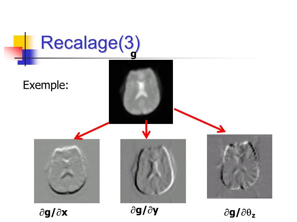 Recalage(3) g Exemple: g/z g/y g/x
