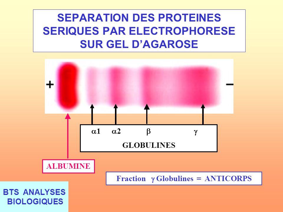 SEPARATION DES PROTEINES SERIQUES PAR ELECTROPHORESE SUR GEL D'AGAROSE