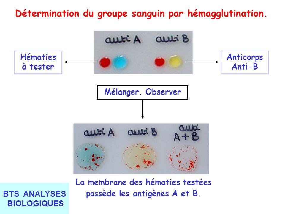 Détermination du groupe sanguin par hémagglutination.